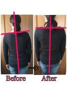 体軸歪み 背骨矯正で左右バランス平行に