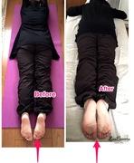 脚の左右長さの違い 施術前後
