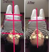 体軸バランスチェック 施術と体幹トレーニングにて、左右矯正