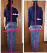 肩と手の長さの左右差は、背骨の歪みから