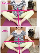 股関節の左の痛み、施術で解消 左右平行に