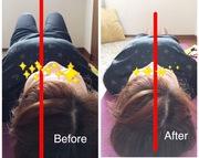 首・体軸チェック 前:お首が右に 後:中心に矯正