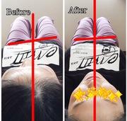 骨盤 左へ傾き ピラティス体幹トレーニングで矯正