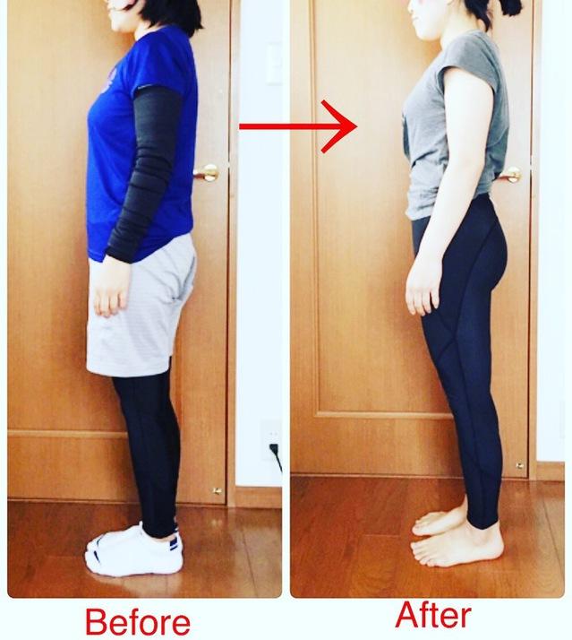 骨盤の緩みからひどくなる腰痛・肩こりを解消し、骨盤を締めて体を楽に