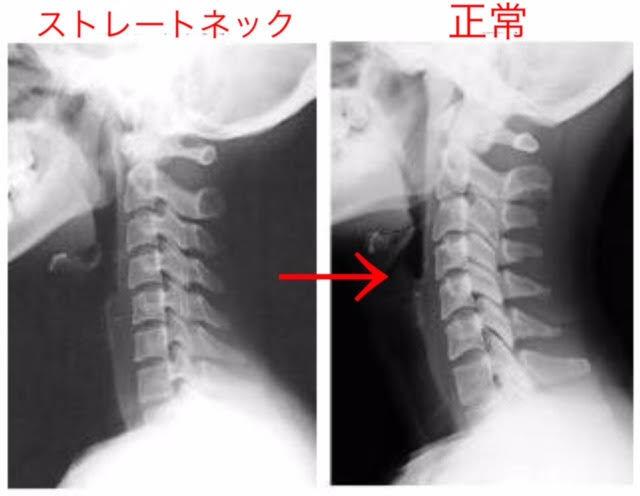 背骨矯正も骨盤から:歪んだ背骨、猫背、ストレートネックを諦めていませんか