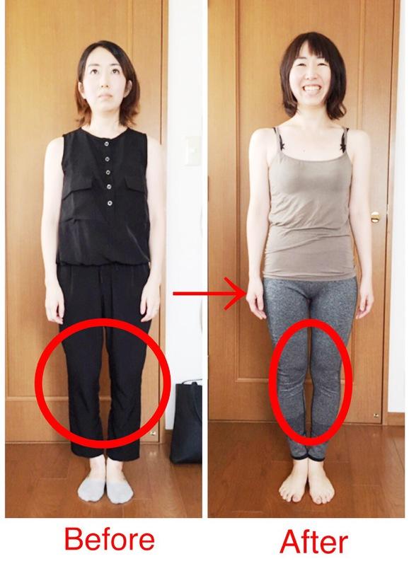 産後と加齢と共にひどくなるО脚をまっすぐ美脚に