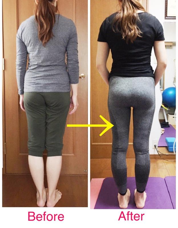 歪んだ背骨、猫背、ストレートネックには施術×適切なトレーニングが最適